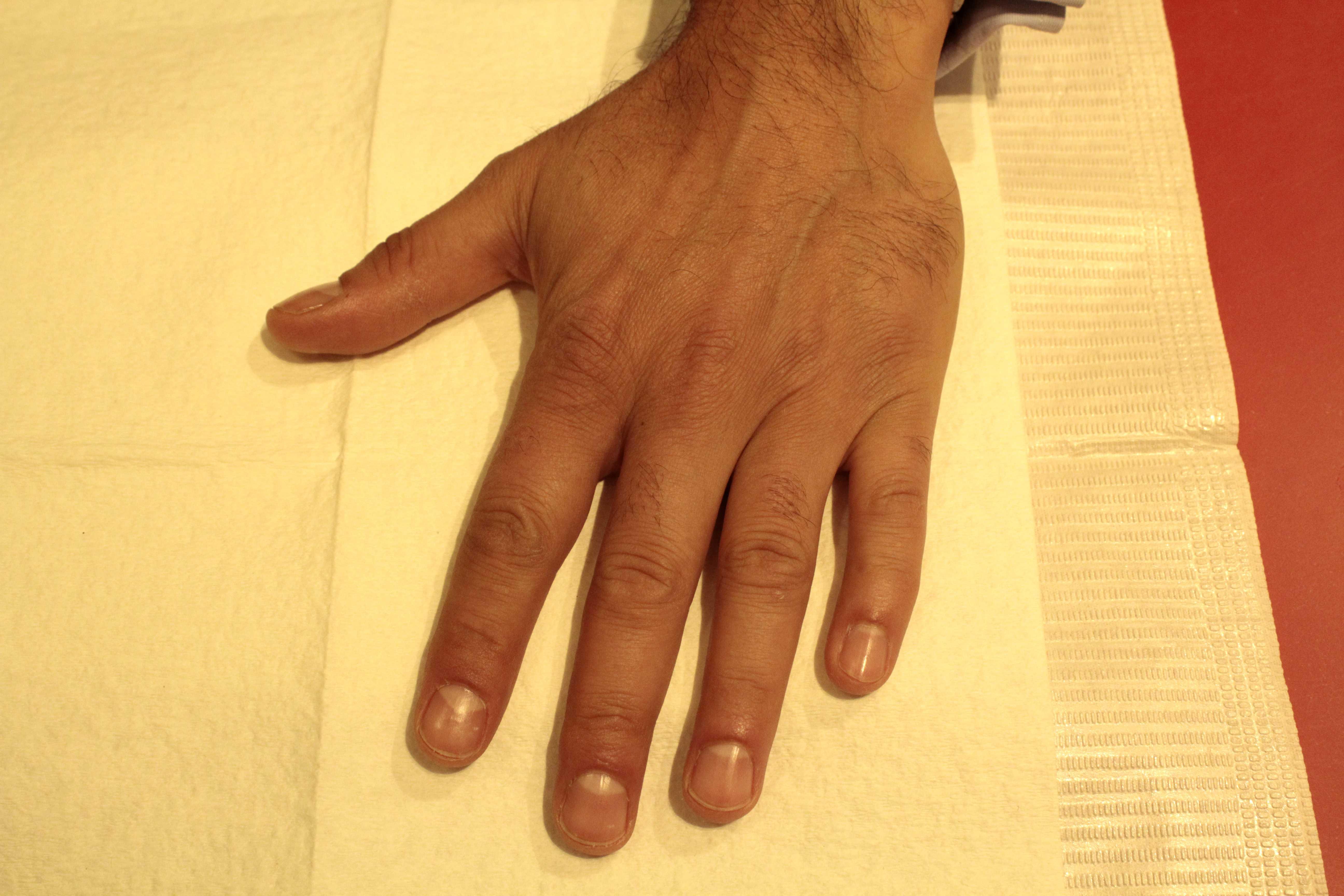 Voici une photo de sa main avant le soin. Léclairage ne permet pas de bien voir mais on note des petites peaux sur les contours de longle et une main un